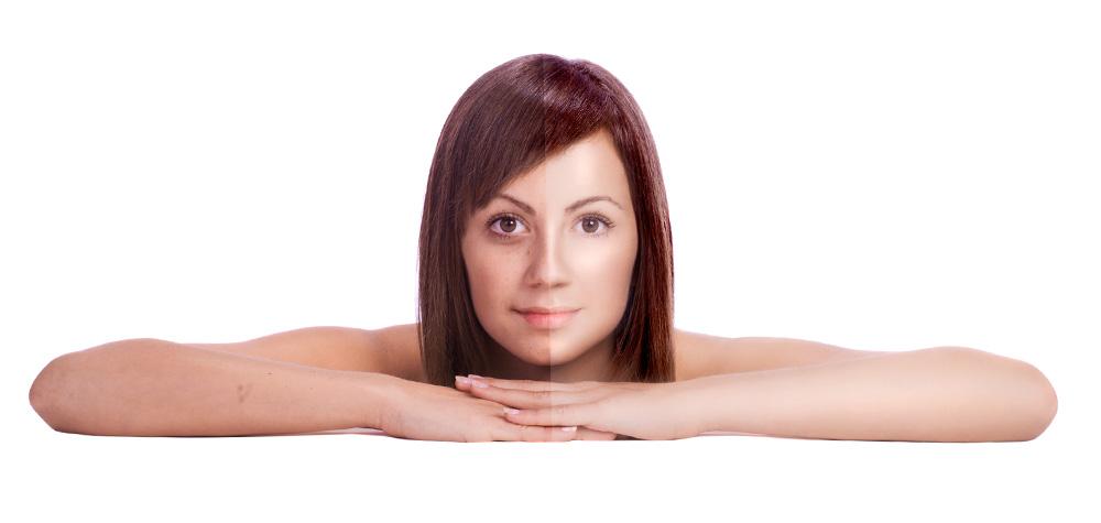 Мазь или крем от веснушки лицо